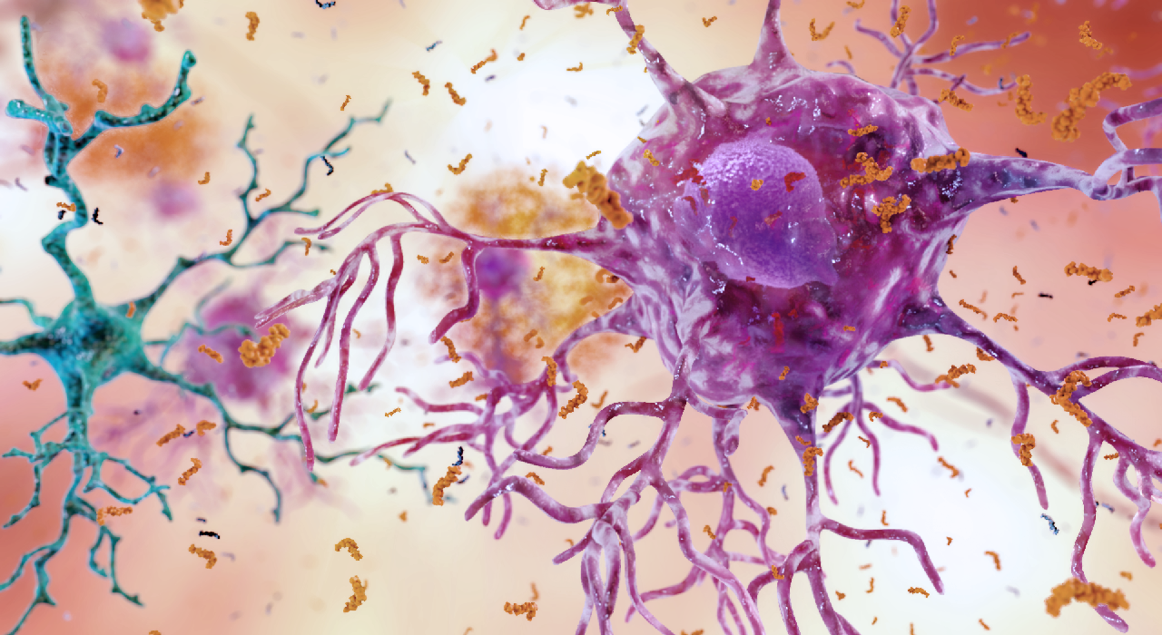Inside Job: Fighting Alzheimer's Disease with Your Own Immune System