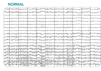 Thumbnail of a normal EEG